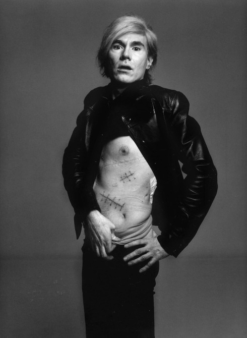 Andy Warhol, 1969 (After Being Shot by Valerie Solanas)